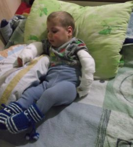 Artem after his second operation on both hands